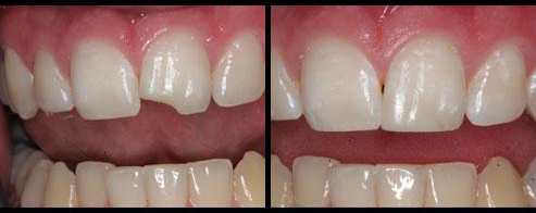 bonded_chipped_tooth