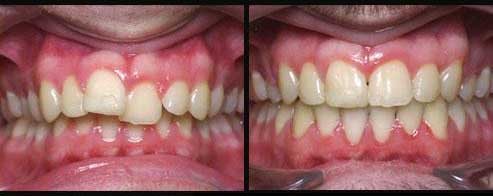 teeth_before_and_after_braces